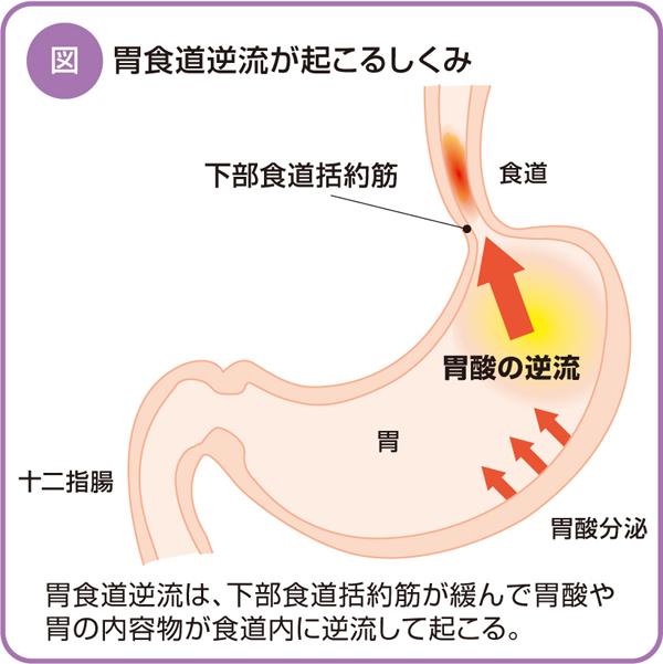 胸やけは「胃食道逆流症」の危険...